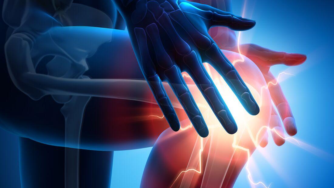 Bei einer Patellasehnenreizung schmerzt es unter der Kniescheibe.