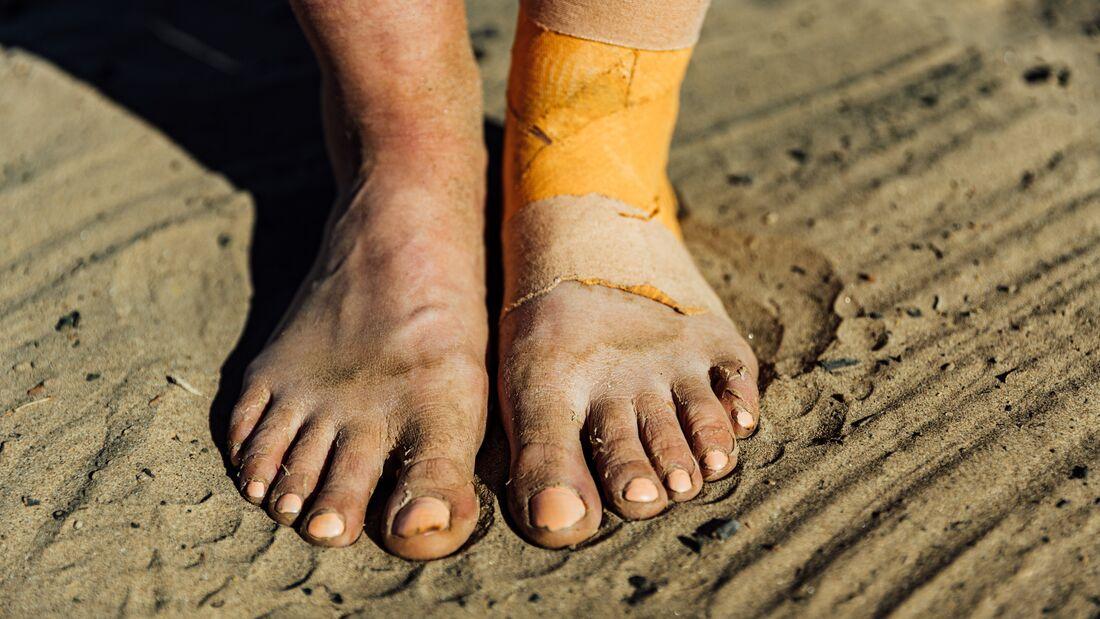 Die Füße von Läufern sind selten makellos.