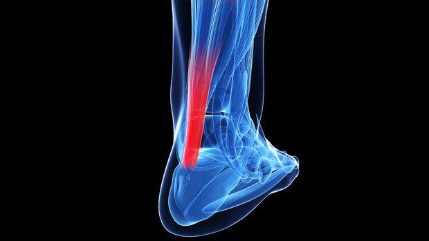 Dreidimensionale Darstellung des menschlichen Fußes. Rot hervorgehoben die Achillessehne.