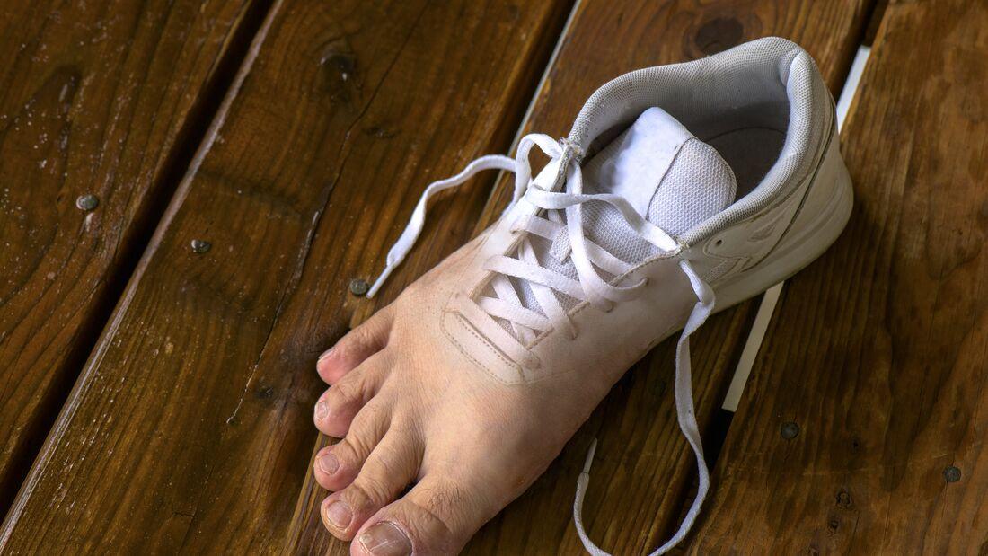 Fußpilz ist ein Tabuthema. Dabei wäre die Ansteckungsgefahr deutlich geringer, wenn Sportler darüber reden würden? Warum? Darum!