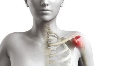 Impingementsyndrom Schulterschmerzen