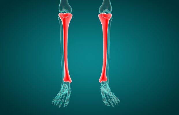 Schmerzen und Empfindlichkeit entlang des Schienbeins (Tibia) während des Laufens deuten auf ein Schienbeinkantensyndrom (Shin Splints) hin.