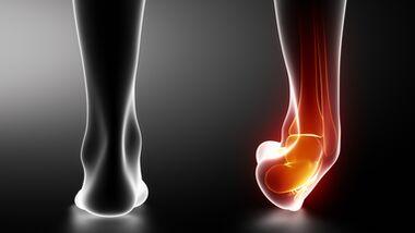 Umknicken ist eine häufige Verletzung bei Läufern