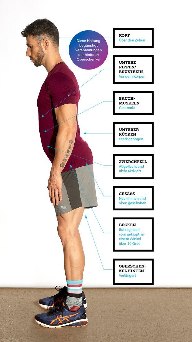Ungesunde Körperhaltung