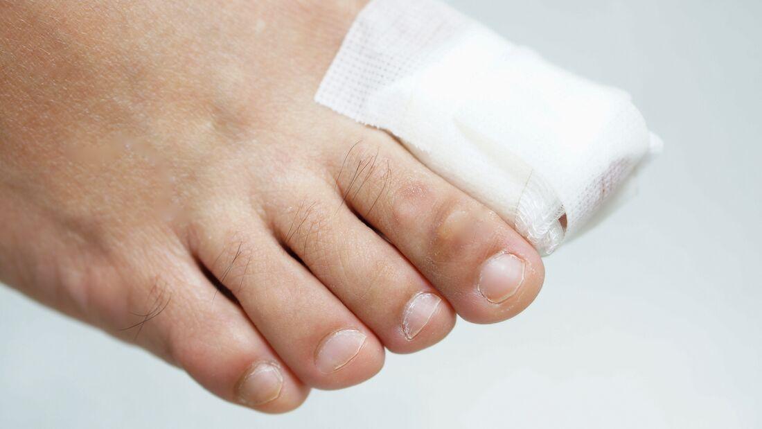 bluterguss unterm fingernagel