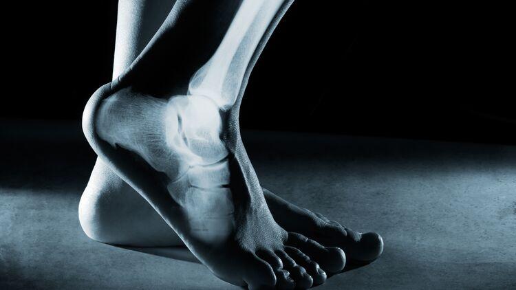 Fuß schuh gebrochener biomac