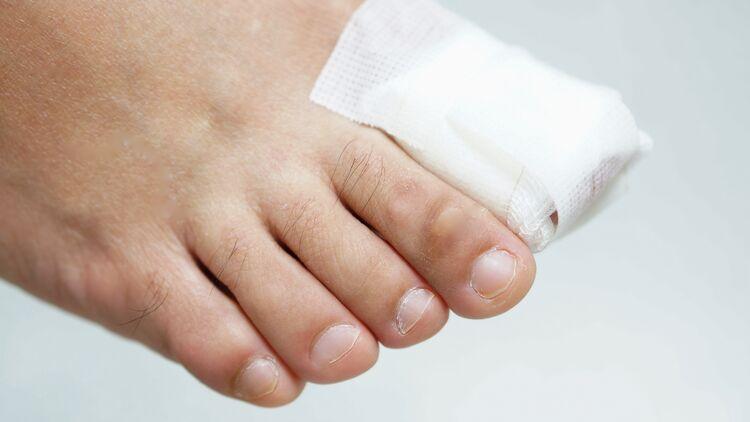 Geht ab fingernagel Fingernagel löst